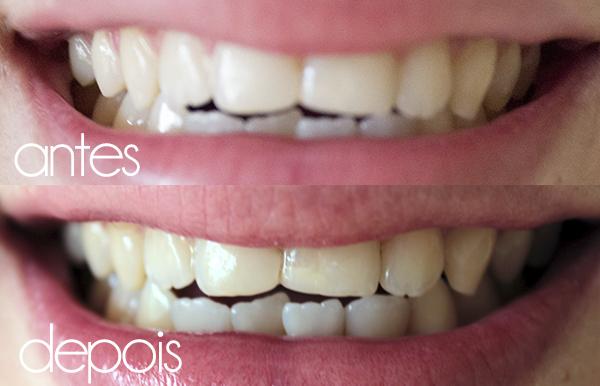Antes e depois oral-b 3D white