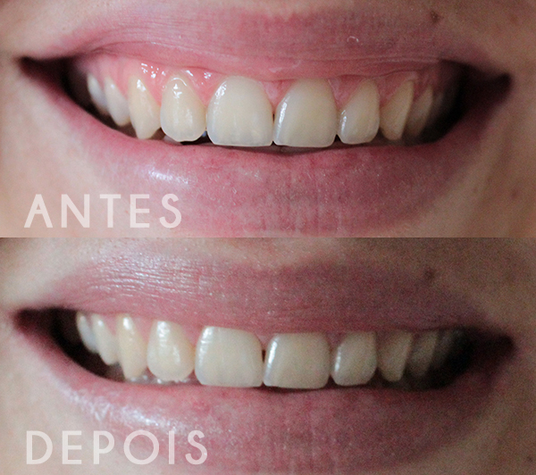 Creme Dental Closeup Diamond Attraction Testa Pra Mim